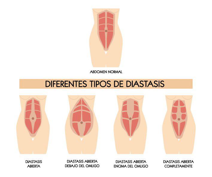 diástasis-abdominal-yogakevala